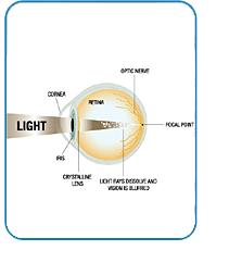 Laser Vision Correction Culpeper